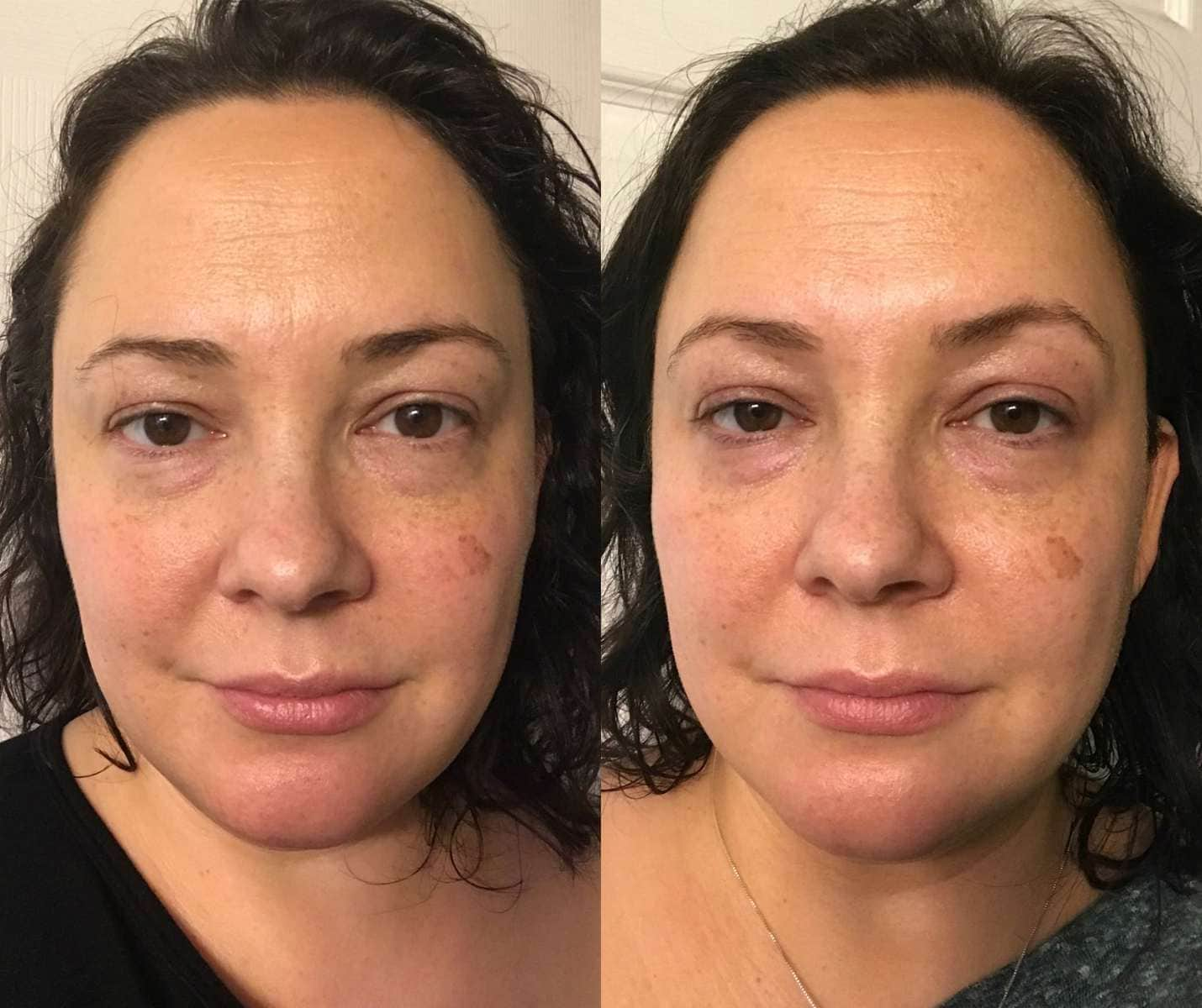Neutrogena Rapid Wrinkle Repair Regenerating Cream review - before and after one week by Wardrobe Oxygen