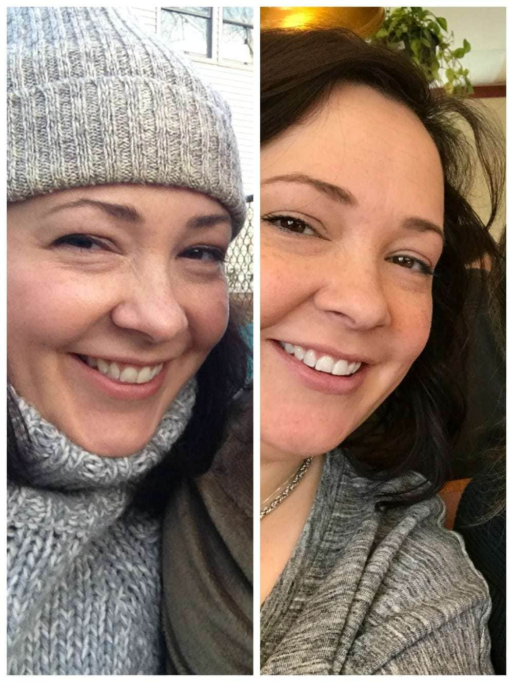 before after teeth whitening over 40