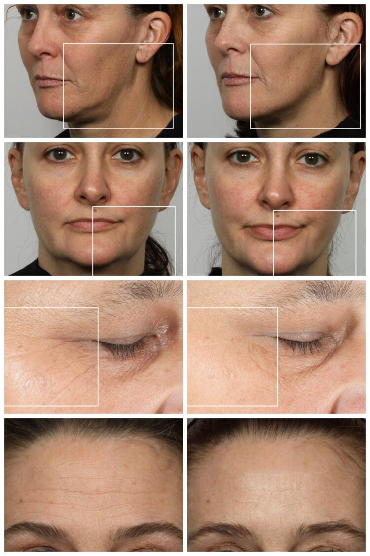 nuface before and after